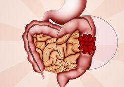 Les médecins repartent à la chasse au cancer colorectal